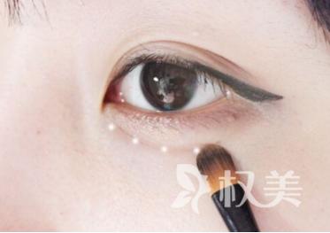 什么是卧蚕 卧蚕和眼袋的区别是什么