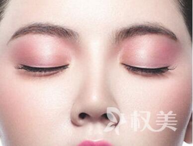 如何去除面部红血丝 郑州二七区人民医院博士整形 激光祛红血丝安全吗