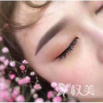福州切眉多久恢复可化妆 东方整形医院做切眉怎么样 价格是多少