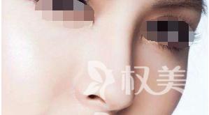 鼻梁塌陷怎么办 广东省中医院珠海医院假体隆鼻好不好
