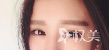去眼袋一般价位是多少 北京凯瑞婷美容整形医院激光去眼袋怎么样