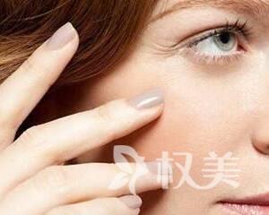 眼角细纹怎么去 芜湖瑞丽整形医院做激光去眼角纹多久见效
