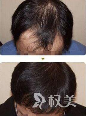 头发种植后会重新长出吗 青岛雍禾植发整形医院怎么样
