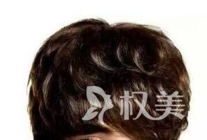 植发医院排名 南京韩辰植发医院做头发加密怎么样