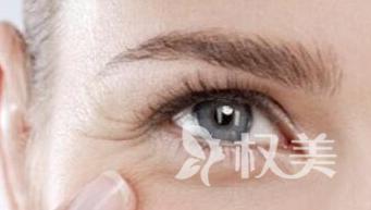 武汉东南整形医院消祛眼角鱼尾纹 激光祛鱼尾纹能化妆吗