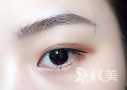 哈尔滨哪位专家做切开双眼皮手术专业 术后多久恢复