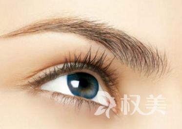 深圳美莱医疗美容医院激光去除鱼尾纹效果如何 有什么优点