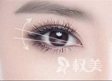 淄博张店德美整形医院埋线双眼皮手术有那些优势  术后多久可以消肿