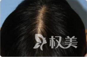 成都美容整形医院植发科头发加密后效果怎么样