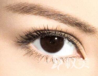 大庆哪里割双眼皮好 切开双眼皮会留疤吗
