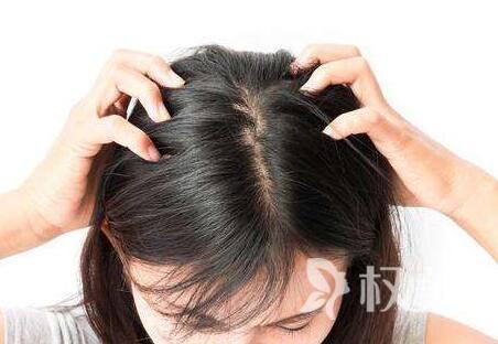 合肥华美植发医院头发加密贵吗 多久能见效