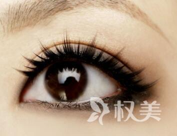 去黑眼圈的方法  武汉欣悦整形医院激光去黑眼圈优势有哪些