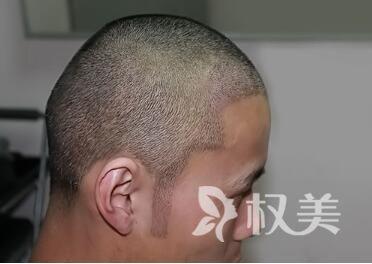 杭州维多利亚植发医院鬓角种植后效果自然吗  怎么做好护理