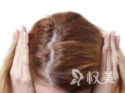 头发加密效果图 厦门银河毛发种植医院头发加密价格