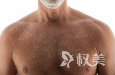 广州新发现植发医院地址 种植胸毛安全吗多少钱