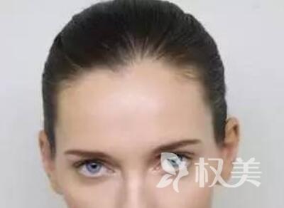 南京华美医院植发科怎么样 种植发际线要多少钱