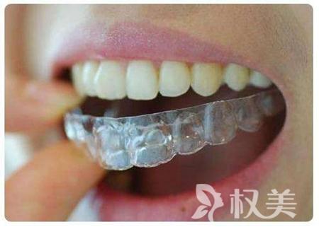 长沙暄美齿科门诊部牙齿矫正要多少钱 牙齿矫正时间长吗