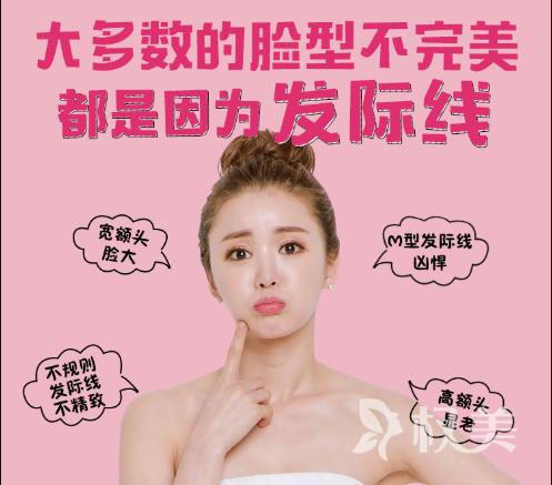 杭州碧莲盛无痕植发医院种植发际线多少钱 多久能洗头