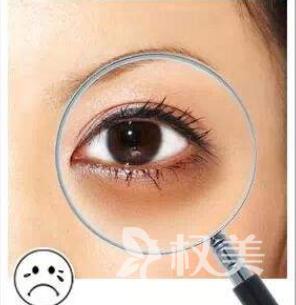 怎么样才能去除黑眼圈 广东激光祛黑眼圈一个疗程需要多少钱
