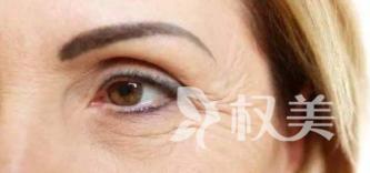 杭州美之源整形医院激光去除鱼尾纹的效果 除皱的优点