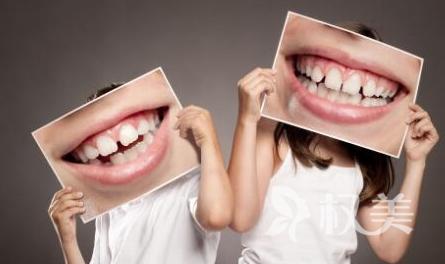 厦门思明峰煜口腔整形医院牙齿地包天的危害 矫正的方法