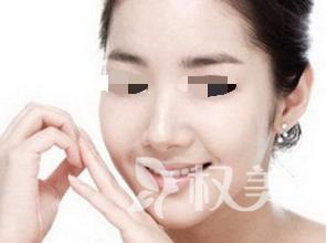 自体软骨隆鼻手术效果怎么样 昆明杨穗美容医院手术价格多少