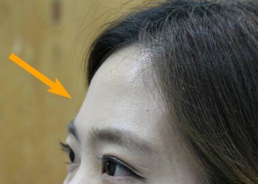 填充额头方法有几种 术后会不会留疤