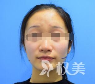磨削下颌角微雕面部棱角 真实案例经验累积一起来看看吧