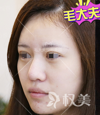 说说我做完硅胶假体隆鼻的恢复感受 侧颜有没有惊艳到你们