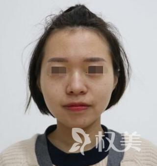 先天遗传鼻子塌 在整形医院做完假体隆鼻让我心情美美哒