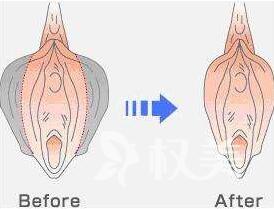 阴蒂肥大造成的原因有哪些呢 阴蒂肥大矫正更好的保护了阴蒂
