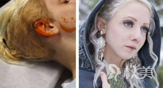 加拿大女模Melynda Moon整容成三角耳 还要做眼球变色像精灵为止