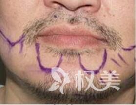 没有胡须太娘怎么办  胡须种植经历  使我阳刚之气倍增