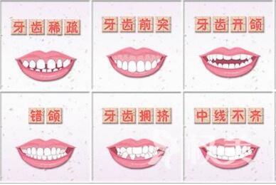 佛山第一人民医院整形科做牙齿矫正的优势有哪些  矫正方法有几种