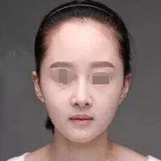 北京植发哪家医院好 北京科发源种植发际线种植 让我告别大脑门