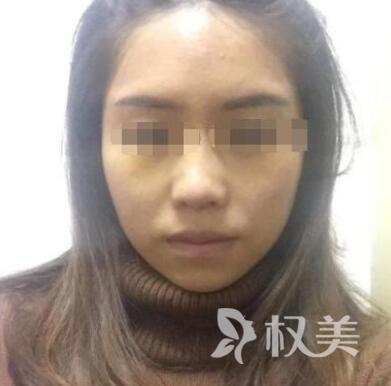 我在东莞时光整形医院做了鼻综合 人变美了也更加自信了
