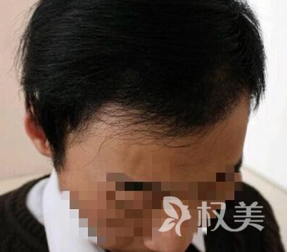 杭州雍禾植发医疗整形医院发际线种植案例 终于不再显老了