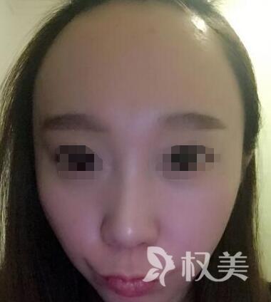 北京瑞丽诗植发医院怎么样 发际线脱发植发让我从此摆脱了大脑门
