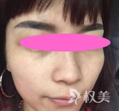 商丘华美整形医院激光去雀斑 不仅消除了多年的雀斑脸也白净了