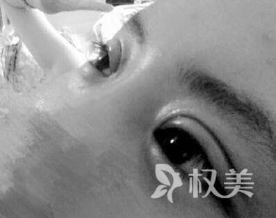 在重庆常春藤做了埋线双眼皮 不开刀也可以这样美