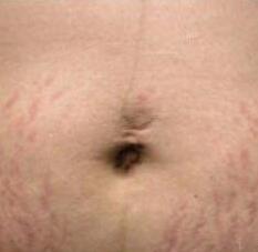 怎样减轻妊娠纹 福州台江医院整形科果酸换肤让我重现美丽瓷肌
