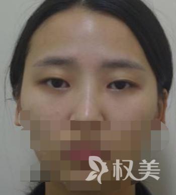 在成都韩美整形医院做了全切双眼皮后 终于不用天天贴双眼皮贴了
