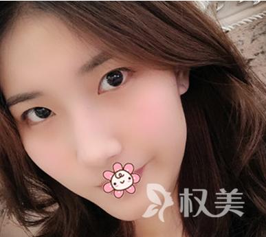 现在不变美难道还要等老了吗 记录我在杭州维多利亚做切开双眼皮手术