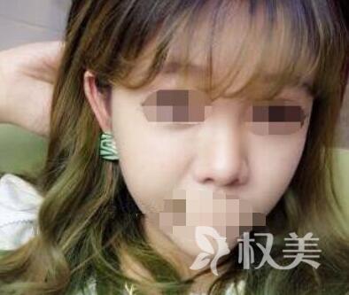 鼻综合体验:西安西京整形医院鼻综合整形 让我的颜值提升了好几档