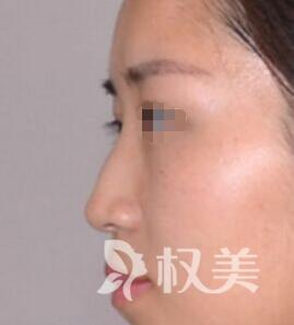 我在洛阳欧兰整形美容医院做了驼峰鼻矫正 整个人气质若兰