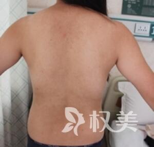 天津维美整形医院腰腹吸脂案例  年轻要对自己好一点啊
