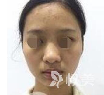 在武汉伊美馨整形医院垫下巴后 我变得更自信了