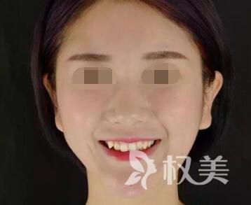 天津时光整形美容医院牙齿矫正案例  拥有整齐牙齿 露出灿烂笑容