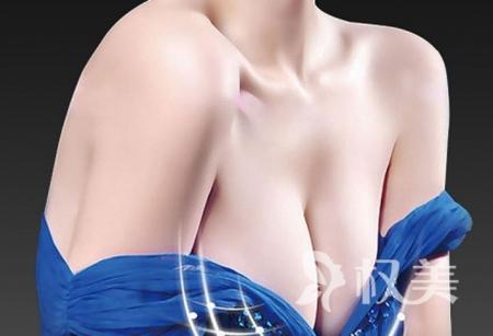 沈阳假体隆胸修复贵不贵 沈阳蓝天整形医院隆胸修复价格