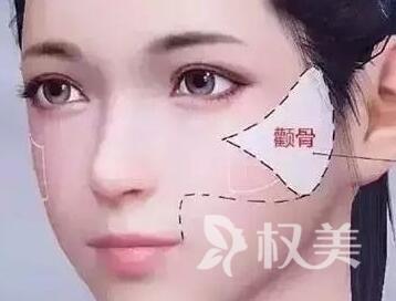 滨州华美整形医院颧骨整形效果怎么样  适合哪些脸型呢
